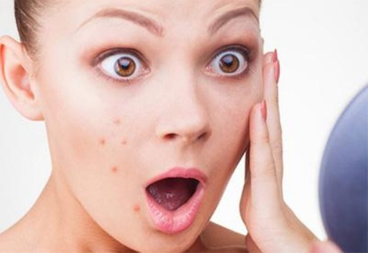 Natural ways to treat acne scars and discoloration treat acne scars ccuart Choice Image