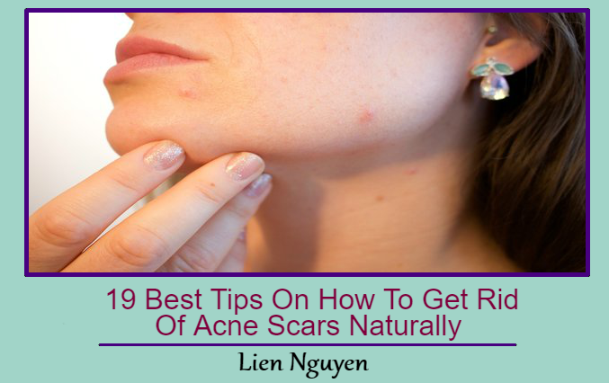 19 Best Tips On How To Get Rid Of Acne Scars Naturally